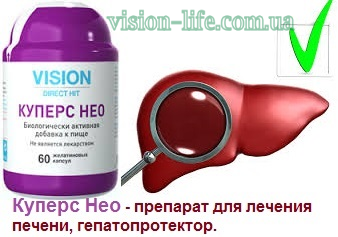 cupers neo vision 2