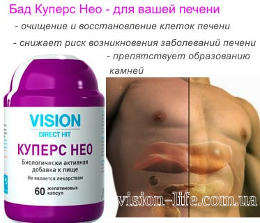 cupers neo vision 6